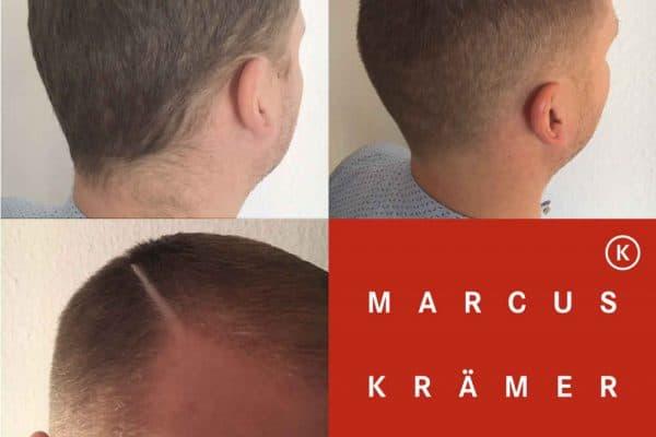 Schnitt | Männerhaarschnitt mit Scheitel